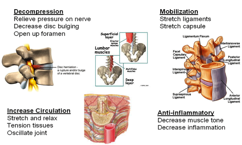 Spondylolthesis and traction